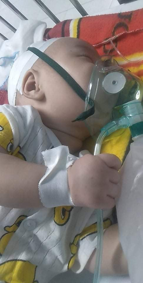 Bé trai hơn 4 tháng nguy kịch sự sống vì teo thực quản khi bố mẹ quá nghèo - Ảnh 4.