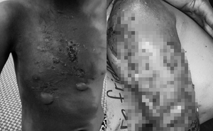 Cảnh báo nhiễm trùng, hoại tử do tự ý đắp thuốc nam chữa bỏng