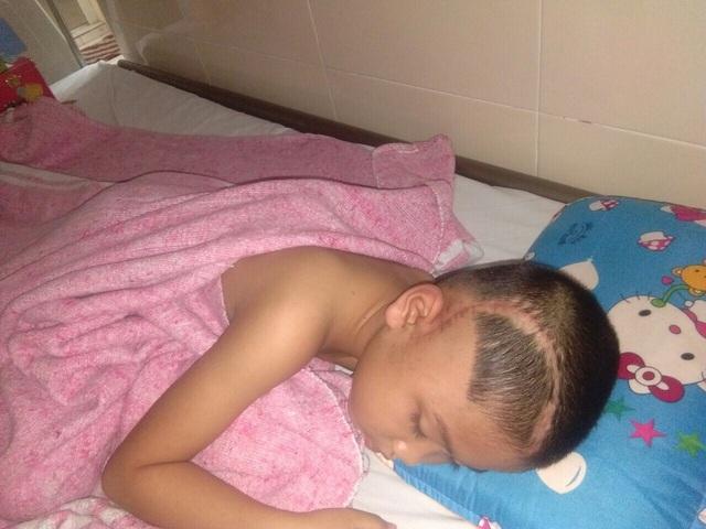 Xót thương cậu bé 9 tuổi bị u não, nhà bị bão lũ cuốn trôi - 2