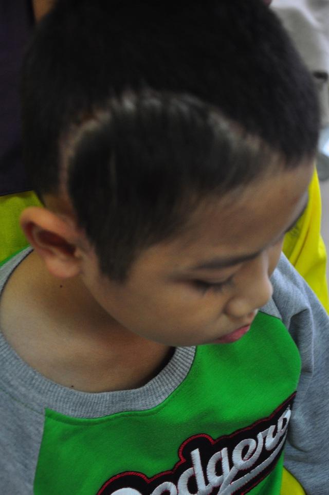 Xót thương cậu bé 9 tuổi bị u não, nhà bị bão lũ cuốn trôi - 6