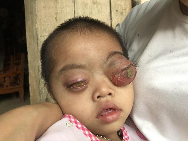 Bé gái có cặp mắt như quả bóng muốn nổ tung cầu cứu...! - 10