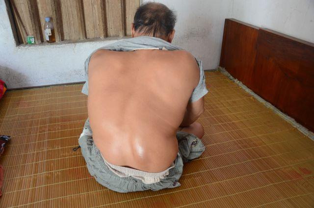 Xót thương người phụ nữ nguyện làm đôi chân cho chồng tật nguyền - 1