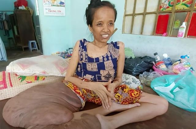 Cảnh đời buồn của người phụ nữ có chân to nhất Việt Nam - Ảnh 5.