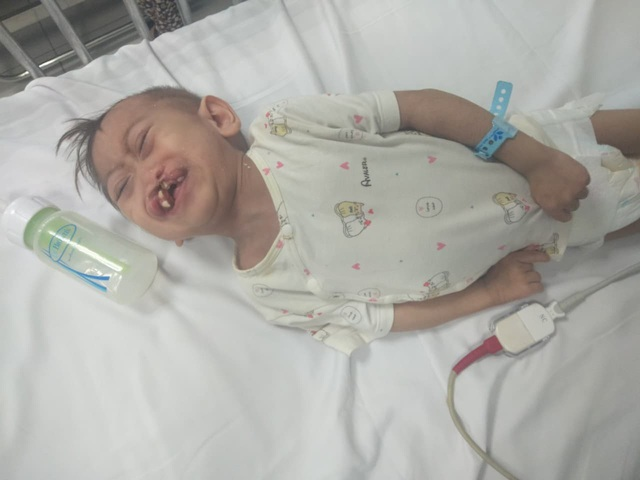 """Xót xa cháu bé 3 tuổi nặng 4,5kg mang nhiều """"khiếm khuyết"""" cần sự trợ giúp - Ảnh 2."""