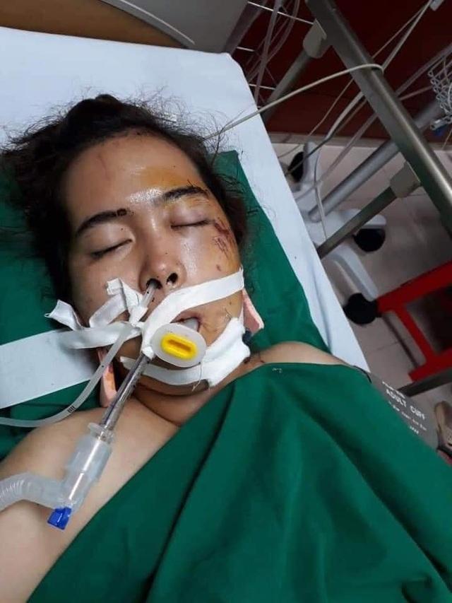 Người mẹ đơn thân hôn mê sâu vì tai nạn giao thông, con bệnh nặng khóc ngằn ngặt vì thiếu sự chăm sóc của mẹ - Ảnh 3.