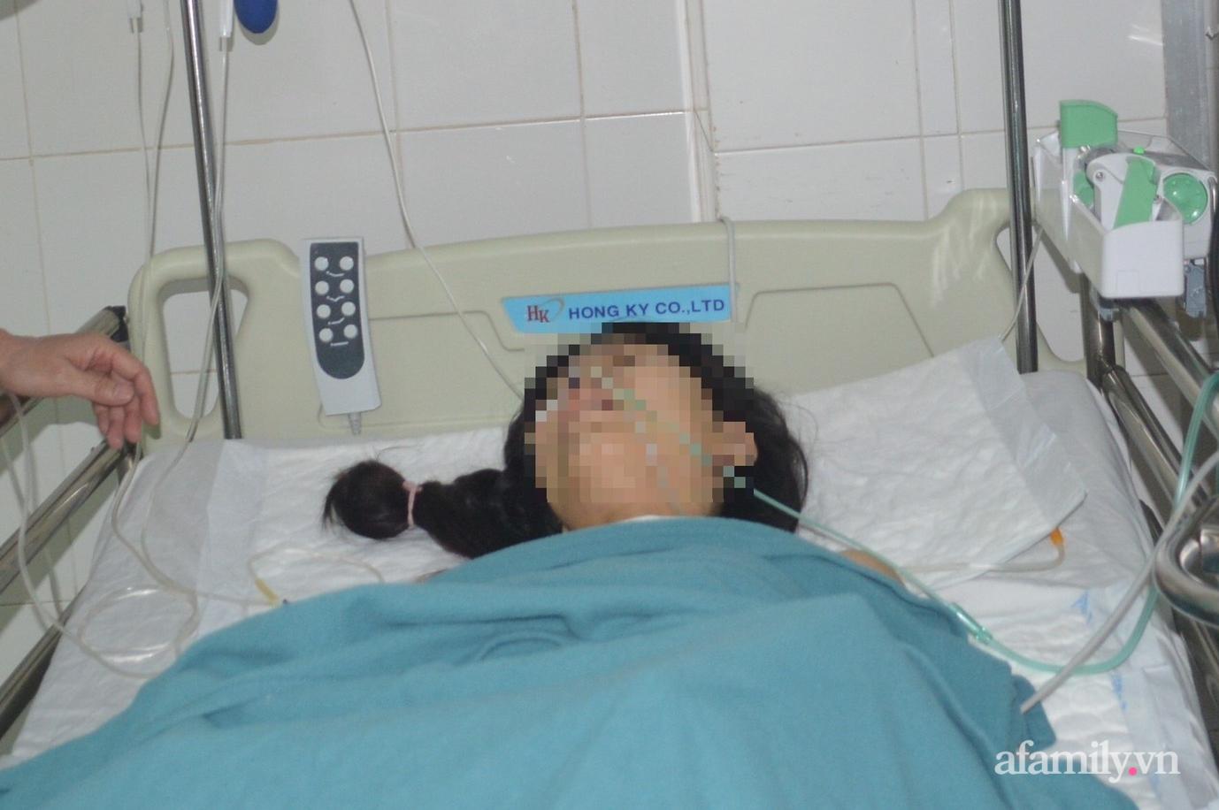 Tai nạn kinh hoàng: Cô gái 22 tuổi ngã ra đường bị container cán qua người được cứu sống thần kỳ - Ảnh 1.
