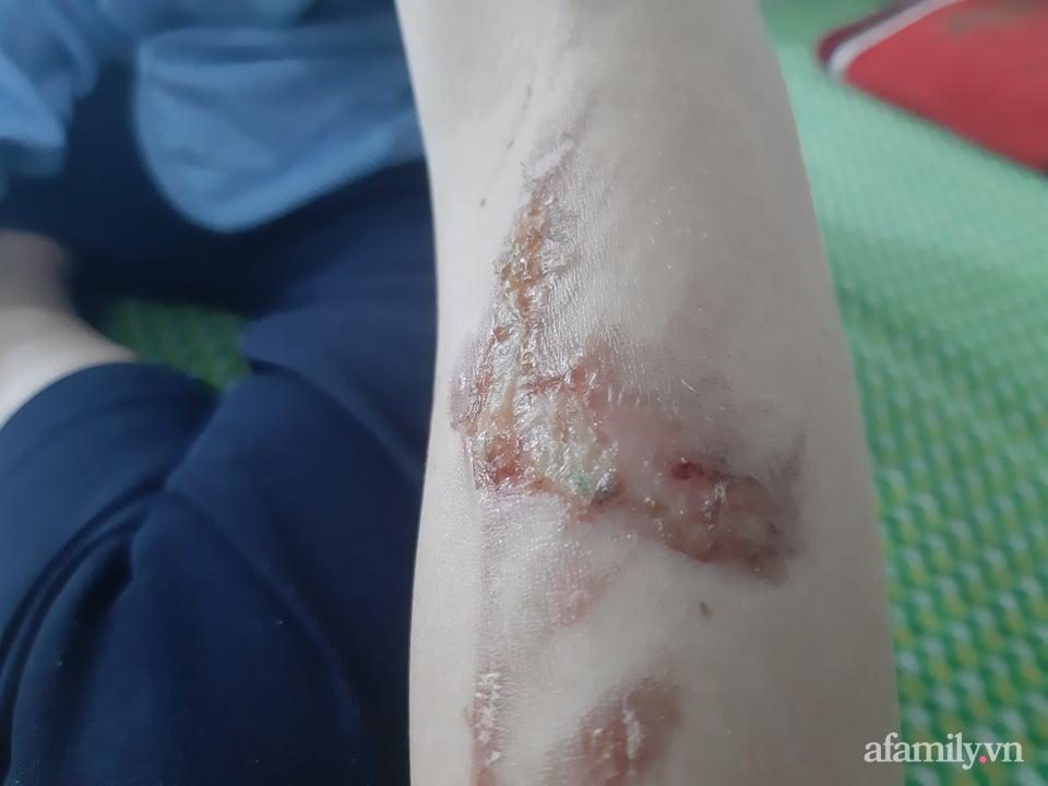 Xót xa hoàn cảnh của cậu bé bị nữ chủ quán bánh xèo hành hạ dã man ở Bắc Ninh: Mẹ mất sớm, bố bị bệnh tâm thần không người chăm sóc - Ảnh 6.