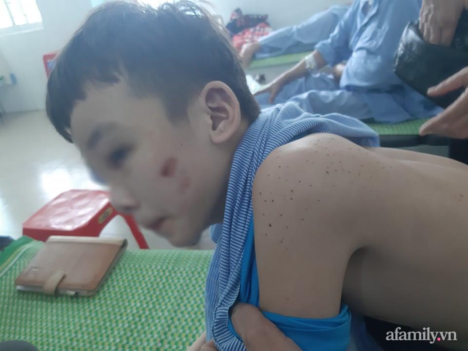 Xót xa hoàn cảnh của cậu bé bị nữ chủ quán bánh xèo hành hạ dã man ở Bắc Ninh: Mẹ mất sớm, bố bị bệnh tâm thần không người chăm sóc - Ảnh 3.