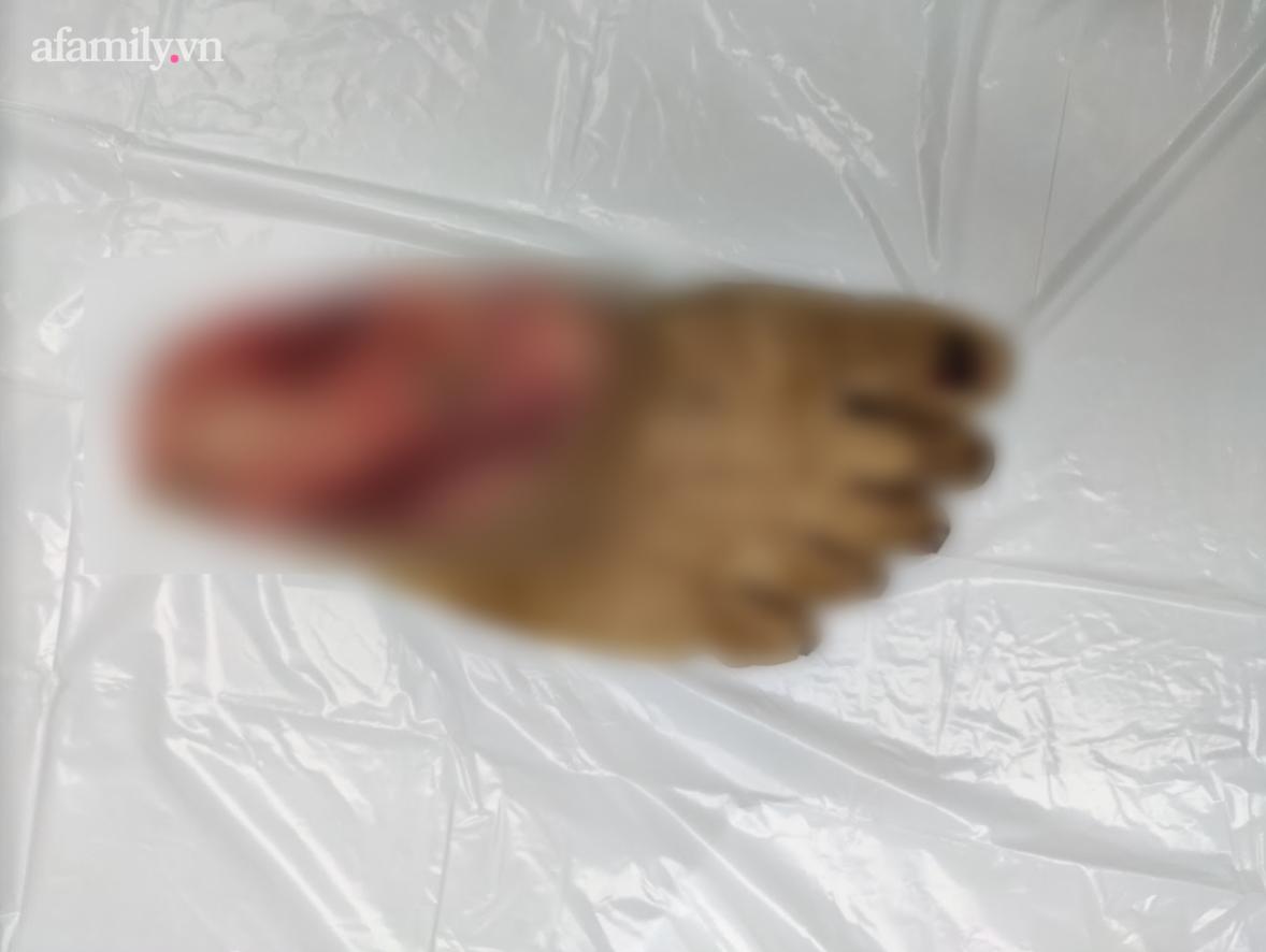 Tai nạn kinh hoàng: Máy cắt cỏ gãy văng ra chém đứt lìa chân người đàn ông, bác sĩ xuyên đêm nối lại - Ảnh 1.