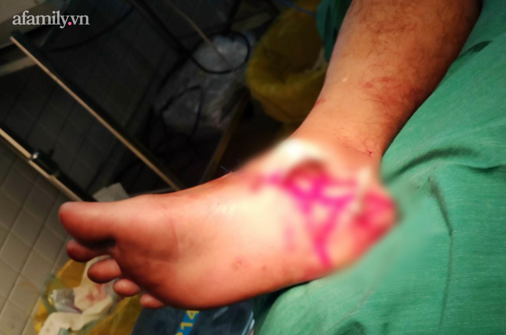 Tai nạn kinh hoàng: Máy cắt cỏ gãy văng ra chém đứt lìa chân người đàn ông, bác sĩ xuyên đêm nối lại - Ảnh 3.