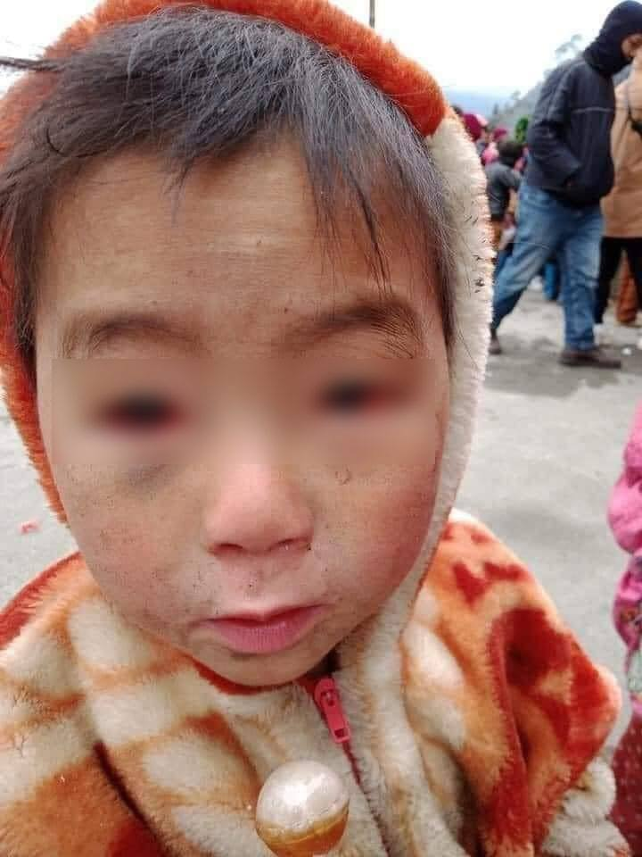 Ứa nước mắt trước hình ảnh em bé vùng cao mắt đỏ ngầu vì thời tiết lạnh thấu xương - Ảnh 4.