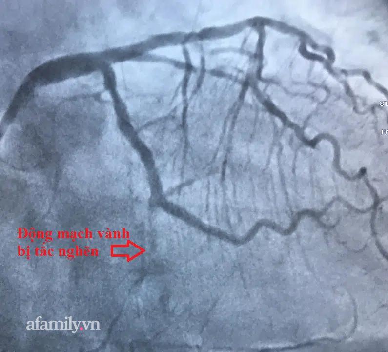 Bác sĩ Sài Gòn cứu 2 bệnh nhân bị nhồi máu cơ tim nguy kịch khi thời tiết chuyển lạnh dịp Tết - Ảnh 1.