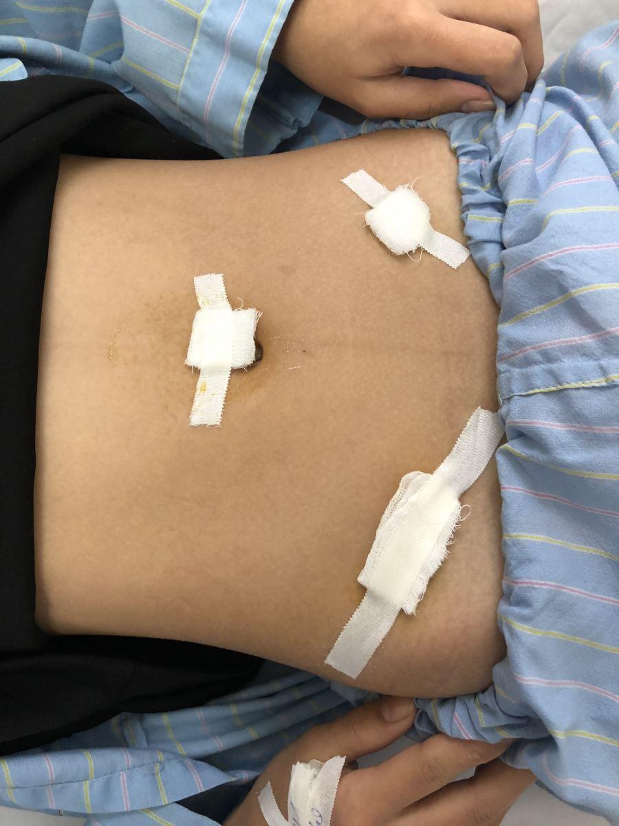 Phẫu thuật nội soi lấy u buồng trứng chứa 7000ml dịch nhầy cho bệnh nhân 16 tuổi - Ảnh 3.