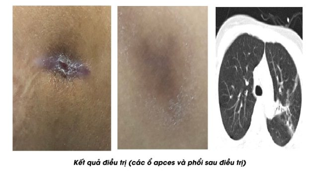 Nữ bệnh nhân mắc bệnh Whitmore ở Phú Thọ được cứu sống kịp thời - Ảnh 2.