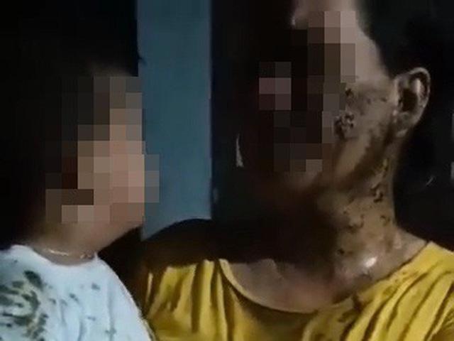 """Người phụ nữ đổ chất thải lên người bé 2 tuổi để đòi nợ: """"Rất tàn nhẫn, xâm hại thân thể và làm nhục trẻ em"""" - Ảnh 3."""