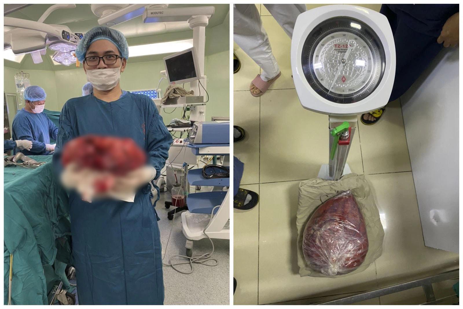 """""""Giảm cân"""" thành công nhờ cắt bỏ khối u nặng 10kg trong ổ bụng - Ảnh 2."""