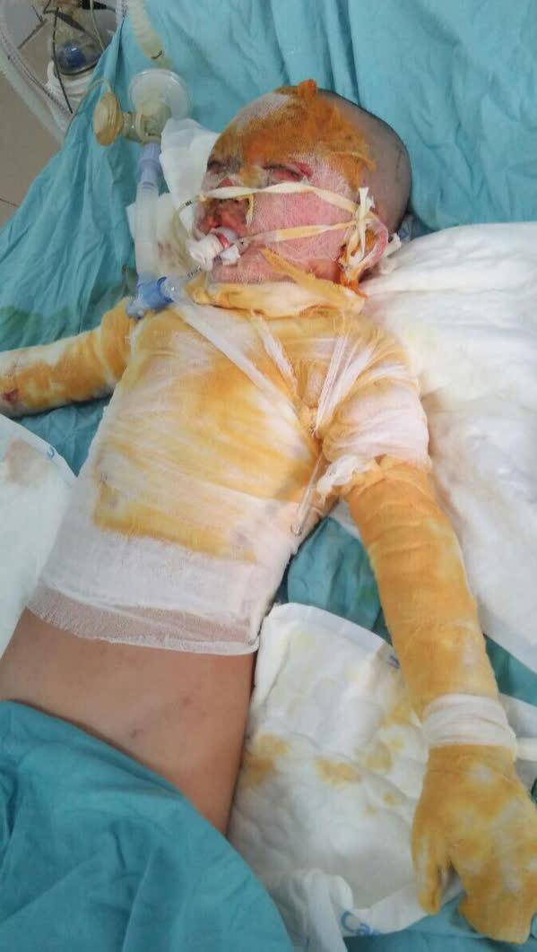 Cơ thể biến dạng, mặt loang lổ do bỏng cồn, bé gái 5 tuổi khẩn thiết cần sự giúp đỡ - Ảnh 2.