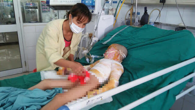 Cơ thể biến dạng, mặt loang lổ do bỏng cồn, bé gái 5 tuổi khẩn thiết cần sự giúp đỡ - Ảnh 4.