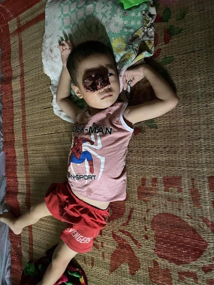 Đau lòng nhìn em bé dân tộc bị khối u đẩy lồi mắt ra ngoài, nguy cơ nhiễm trùng cao không có tiền chữa bệnh - Ảnh 3.