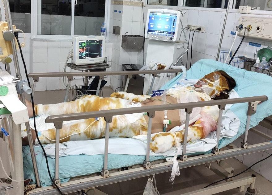 Xót xa cảnh mẹ nguy kịch vì bỏng nặng, hai con nhỏ không người chăm sóc phải gửi hàng xóm - Ảnh 2.