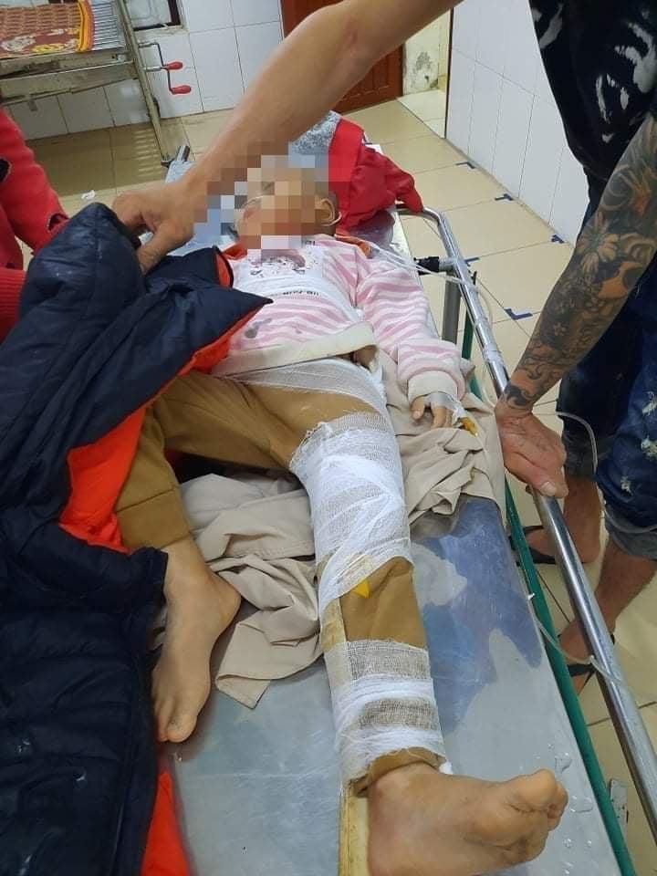 Hà Tĩnh: Sạt lở đất nghiêm trọng khiến 2 trẻ em bị thương  - Ảnh 2.