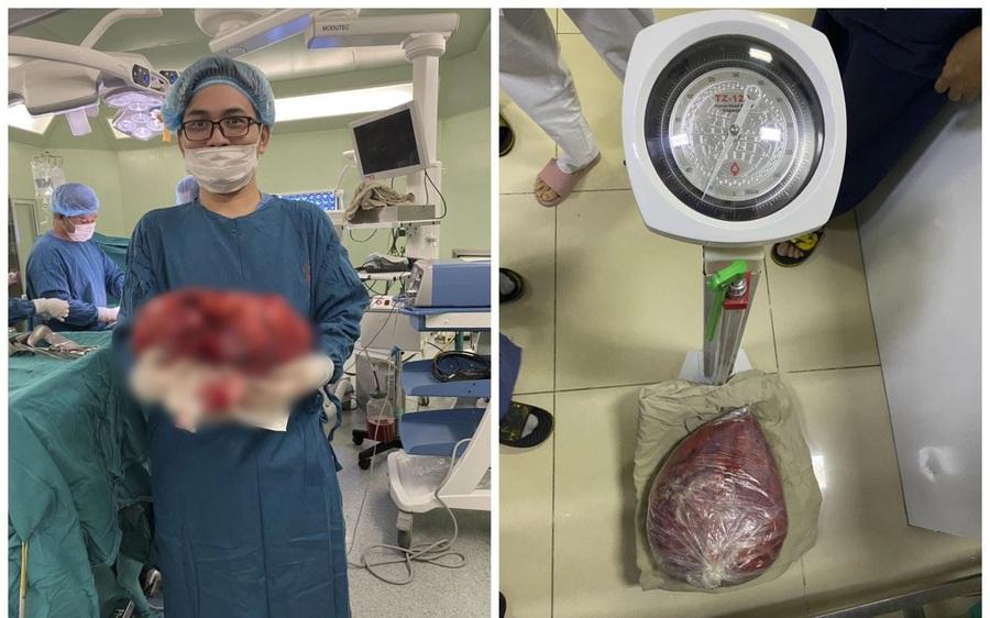 """""""Giảm cân"""" thành công nhờ cắt bỏ khối u nặng 10kg trong ổ bụng"""