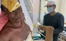 Thương tâm: Con trai cụt tay nghỉ việc vào viện chăm sóc cha phải cắt bỏ 2 bàn chân vì bỏng điện nặng