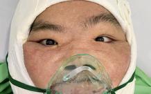 """Lần phẫu thuật thứ 2: 9 giờ căng thẳng tái tạo khuôn miệng cho người đàn ông """"mặt quỷ"""", mắt đỏ như máu ở An Giang"""