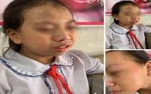 Hà Giang: Tạm đình chỉ cô giáo tát học sinh đỏ mặt trong lớp