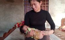 Ánh mắt cầu cứu của bé trai 1 tháng tuổi chào đời không có hậu môn