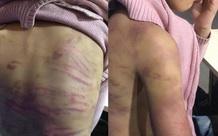 Người mẹ và gã nhân tình nhẫn tâm bạo hành, xâm hại bé gái 12 tuổi ở Hà Nội sẽ phải trả giá như thế nào?