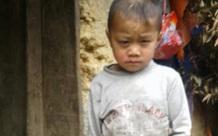 Mắt ngày càng lồi to, cậu bé dân tộc H'Mông nguy cơ bị mù vì không có tiền đi khám mắt