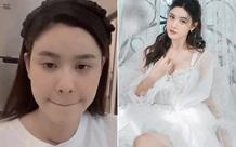 Trương Quỳnh Anh phải phẫu thuật vì mắc bệnh tuyến giáp