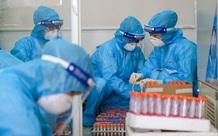 Tối 21/6: Việt Nam có thêm 135 ca mắc mới, 224 bệnh nhân COVID-19 được công bố khỏi bệnh