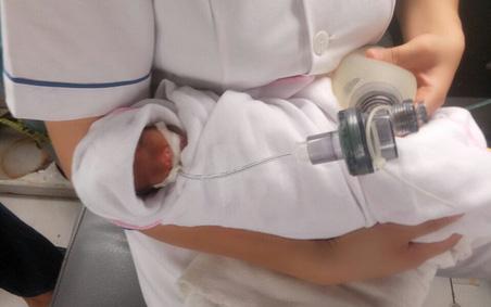Hành trình nuôi sống kỳ diệu của em bé sinh ra với cân nặng nhỏ nhất Việt Nam